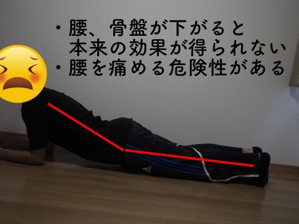 プランクの間違ったフォーム:腰の位置が下がっている画像